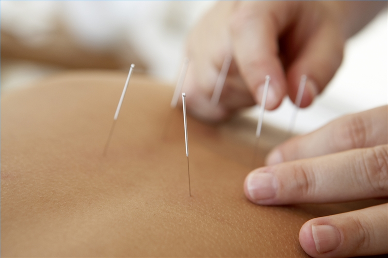 Dr Nekessa Remy is a certified Medical Acupuncturist & Traditional Chinese Acupuncturist